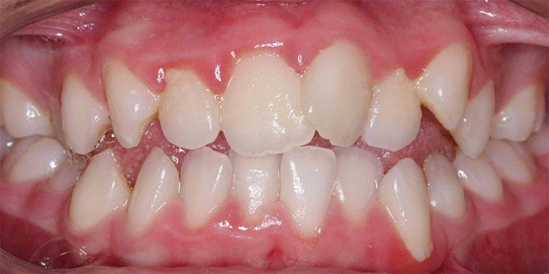 Răng cửa mọc lệch khiến răng vĩnh viễn mọc chen ngang