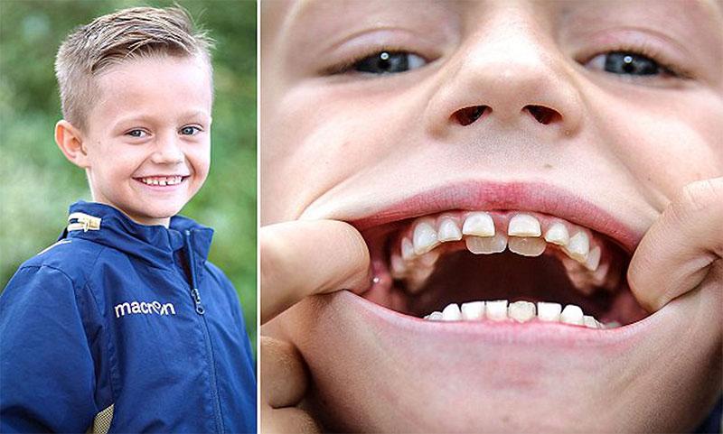 Răng sữa chưa rụng đã mọc răng vĩnh viễn gây mất thẩm mỹ khuôn mặt