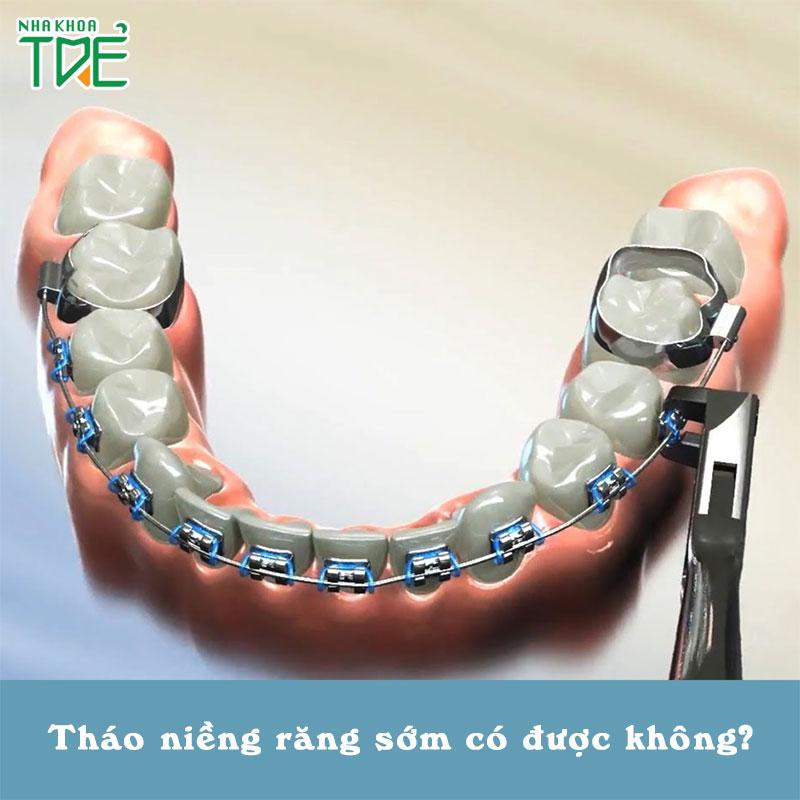 Tháo niềng răng sớm trước thời hạn có được không?