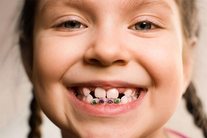 Niềng răng trẻ em thường nhanh hơn niềng răng ở người lớn