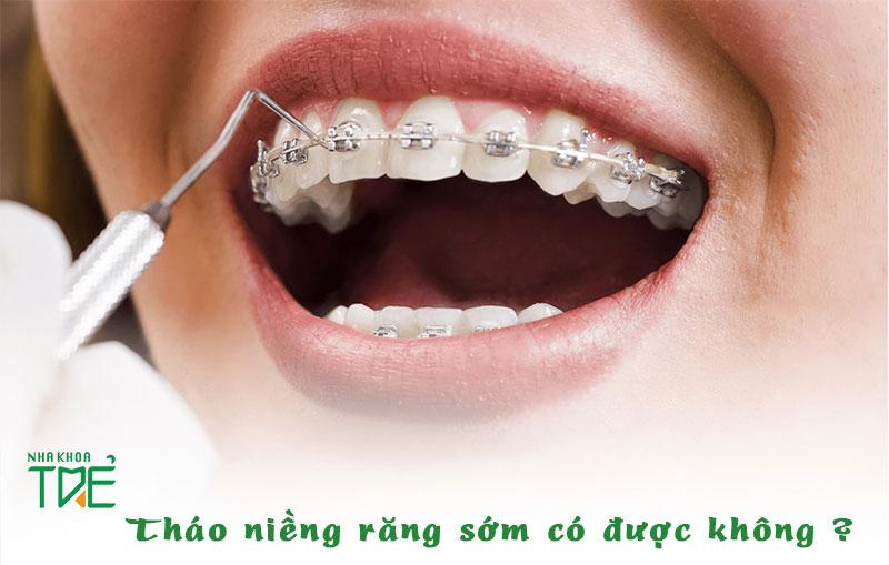 Có thể tháo niềng răng sớm nhưng phải có chỉ định của bác sĩ