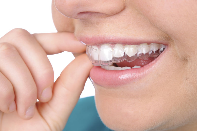 Nên đeo hàm duy trì sau khi tháo niềng răng để tránh răng chạy về vị trí cũ