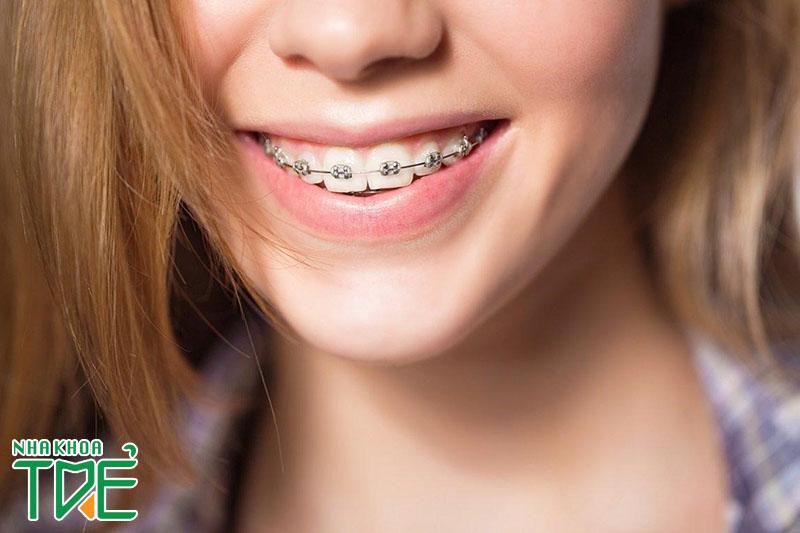 Thực hư niềng răng mặt Vline. Sự thay đổi của khuôn mặt khi niềng răng
