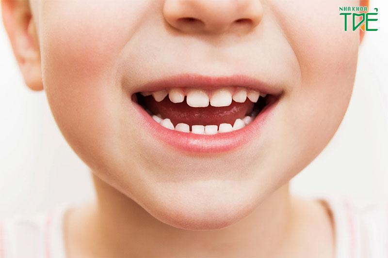 Tại sao trẻ chậm thay răng sữa thành các răng vĩnh viễn?