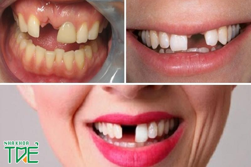 Trồng răng cửa loại nào tốt?