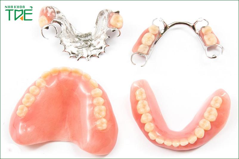 Trồng răng tháo lắp nhựa dẻo có tốt không? Giá bao nhiêu?