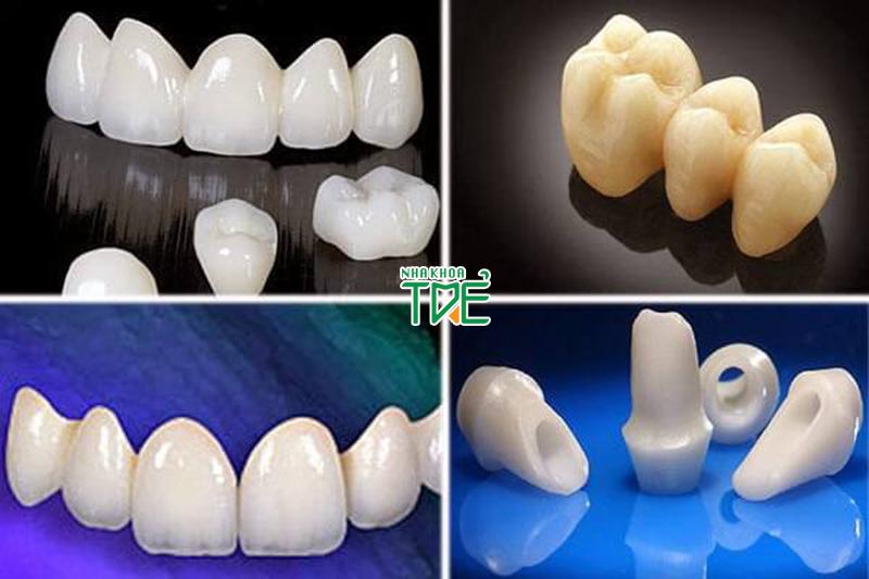Ưu nhược điểm của các loại bọc răng sứ