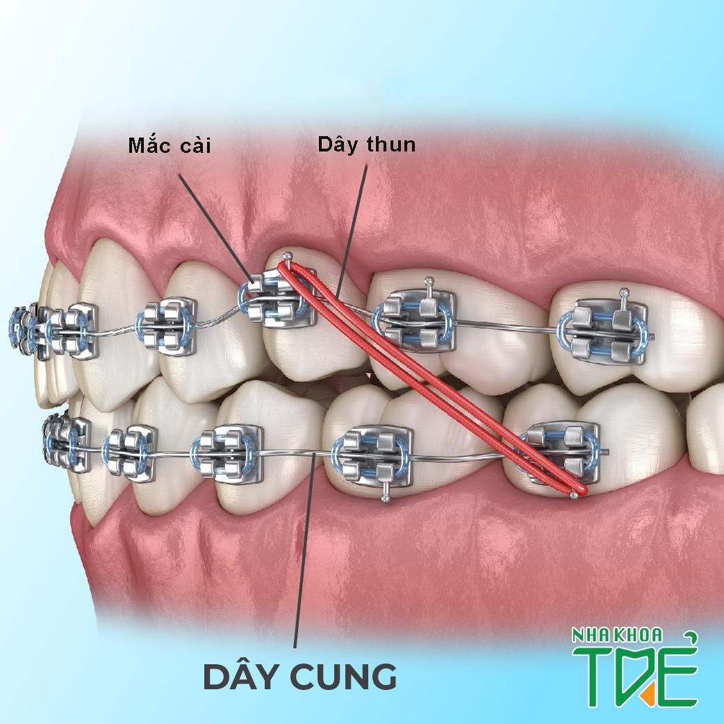 Ưu nhược điểm của các loại dây cung niềng răng