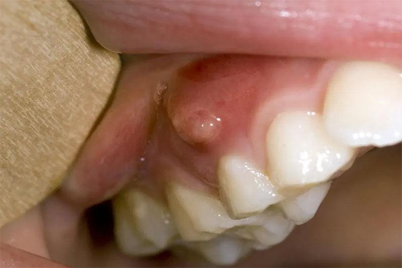 Viêm chân răng ở trẻ em – Nguyên nhân và cách điều trị dứt điểm