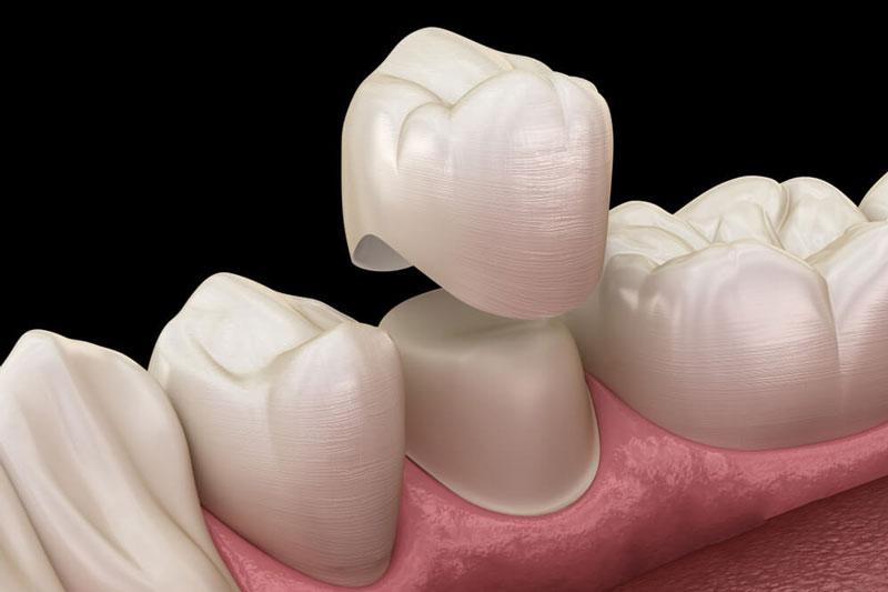 Mài cùi răng phải tuân theo 1 tỷ lệ nhất định