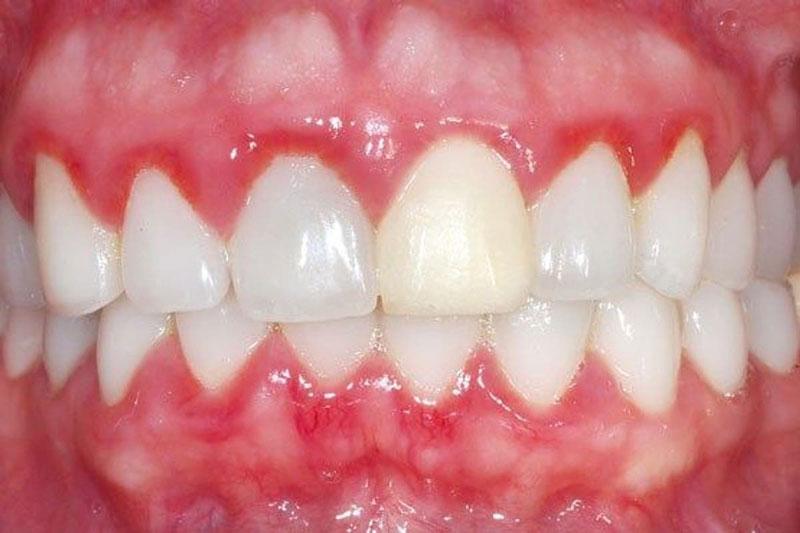 Biến chứng bọc răng sứ có thể là viêm lợi (nếu thực hiện bởi bác sĩ tay nghề kém)