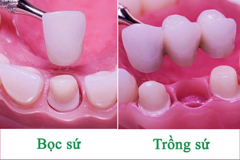 Bọc răng sứ và trồng răng sứ khác nhau như thế nào?
