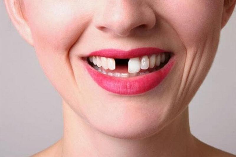 Trường hợp mất răng thì có thể bọc răng sứ để khôi phục ăn nhai và thẩm mỹ
