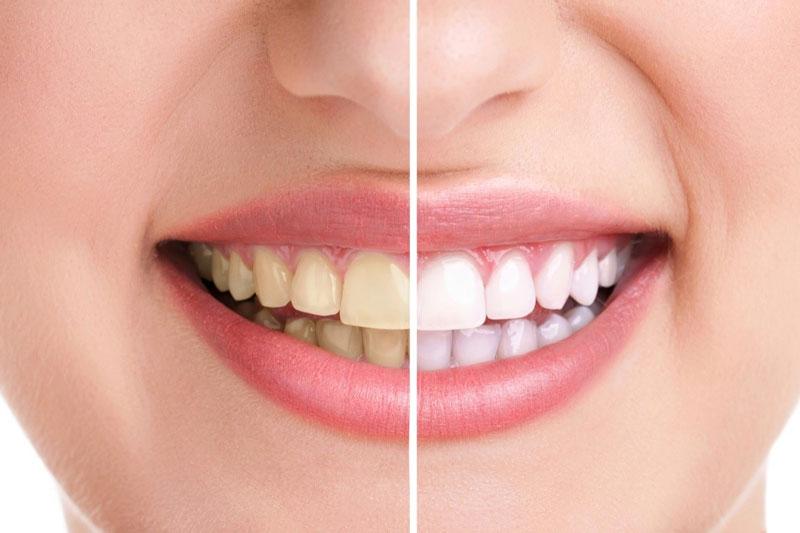 Răng bị nhiễm màu nặng thì nên bọc răng sứ để phục hình