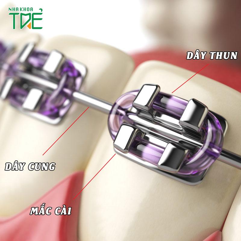 [Full A - Z] Các loại khí cụ chỉnh nha thường sử dụng khi niềng răng