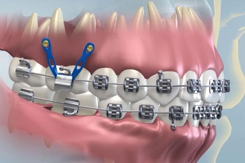 Mini vis chỉnh nha giúp răng dịch chuyển nhanh hơn, dễ dàng hơn