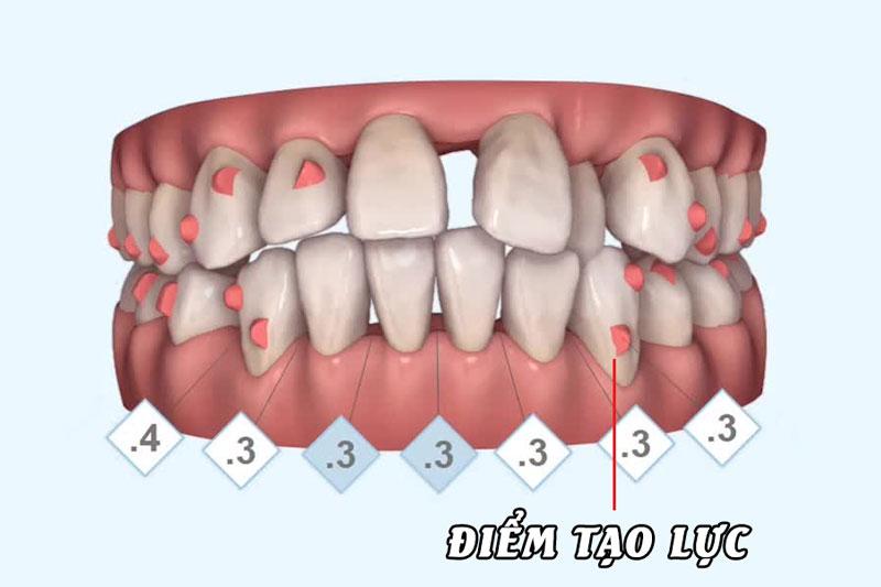 Điểm tạo lực hỗ trợ máng niềng trong suốt để nắn chỉnh răng nhanh chóng hơn
