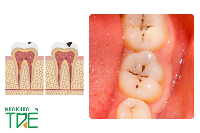Cách điều trị sâu răng nhẹ nhanh chóng và hiệu quả nhất
