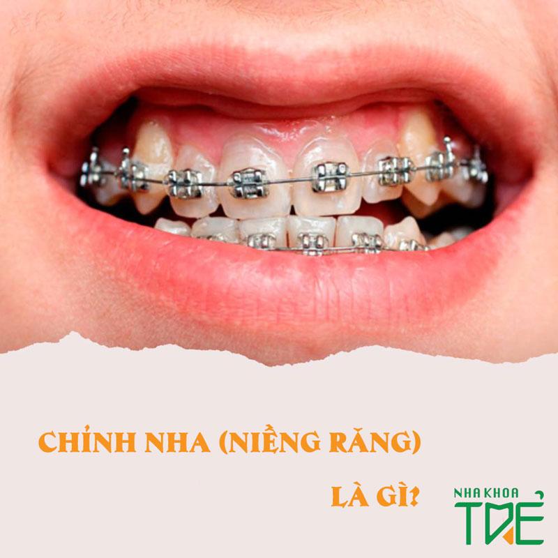 Chỉnh nha là gì? Các phương pháp niềng răng chỉnh nha hiện nay