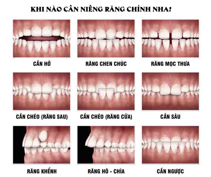 Các trường hợp răng mọc lệch và sai khớp cắn cần điều trị