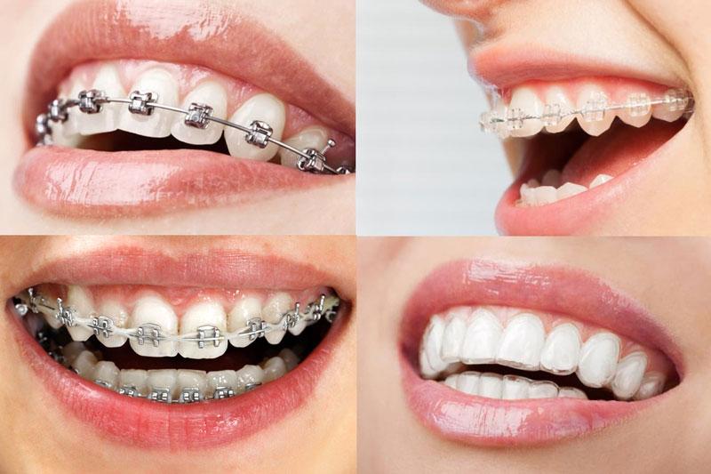 Các phương pháp niềng răng chỉnh nha phổ biến tại các nha khoa