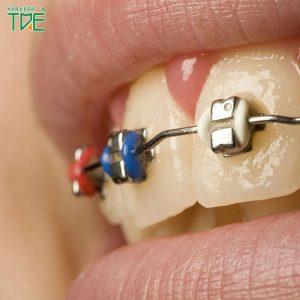 Chỉnh nha tiền phục hình là gì? Trường hợp nào phải nắn chỉnh răng trước khi phục hình