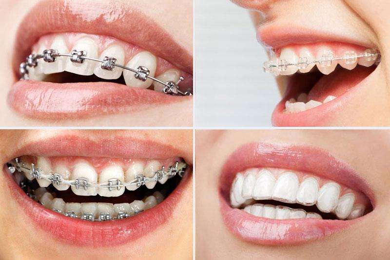 Các phương pháp niềng răng chỉnh nha hiện nay