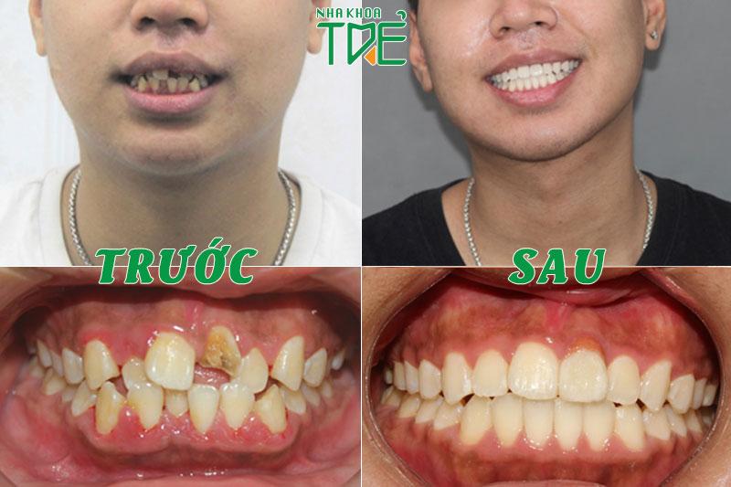 Chỉnh nha tiền phục hình giúp sắp xếp các răng về đúng vị trí