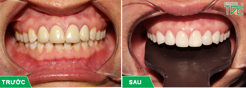 Bọc răng sứ cho răng xỉn màu trở nên trắng sáng hơn