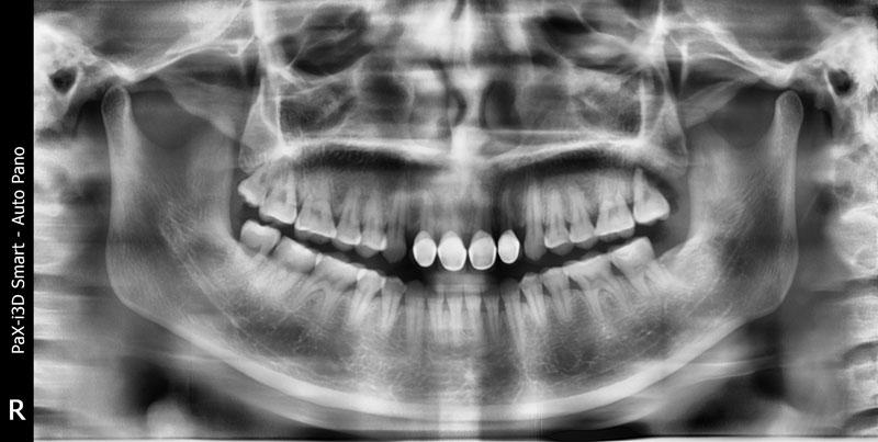 Chụp X - quang răng để biết chính xác cấu trúc xương hàm của trẻ