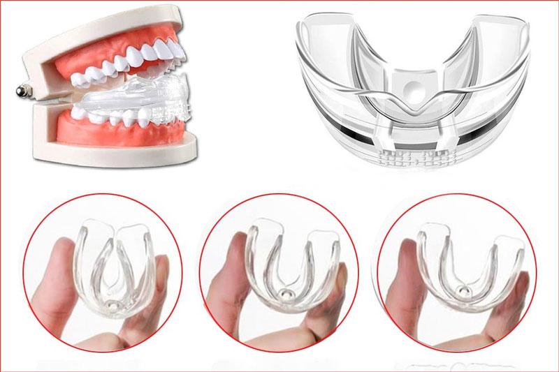 Đeo bảo vệ hàm cho trẻ để tránh nguy cơ va chạm làm gãy vỡ răng