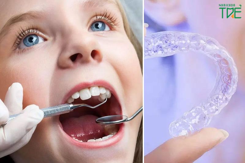 Niềng răng trong suốt giúp trẻ tự tin ngay cả khi đeo niềng
