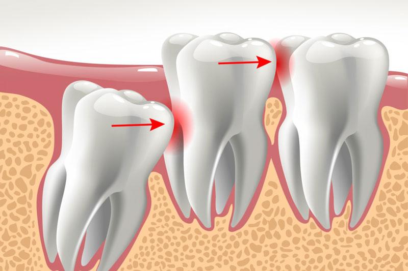 Răng khôn đau bao lâu phụ thuộc vào hướng mọc của răng