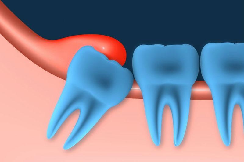 Răng khôn mọc làm sưng nướu, gây đau nhức