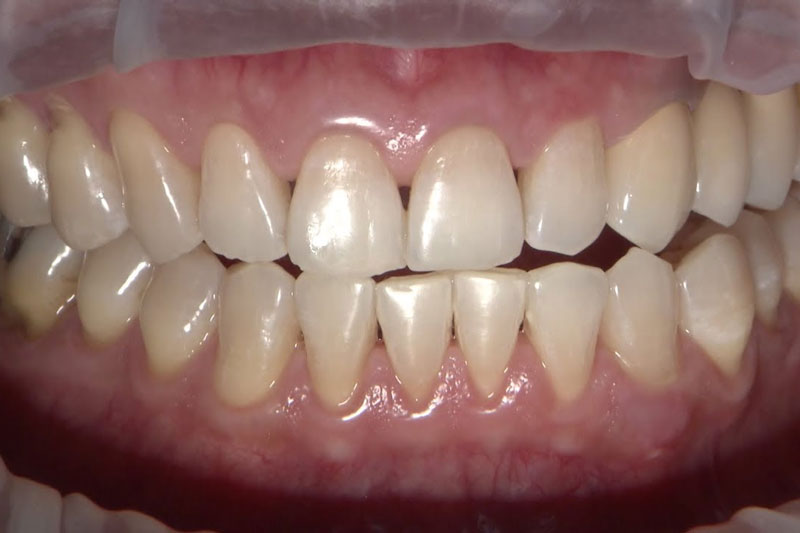 Khớp cắn chéo có biểu hiện là các răng giữa hai hàm không đối xứng