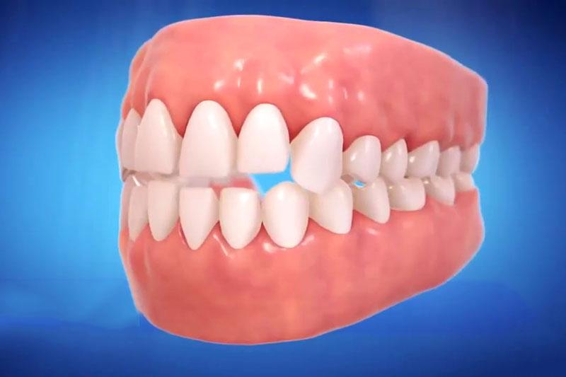 Các nhóm răng trước của khớp cắn hở sẽ không chạm nhau