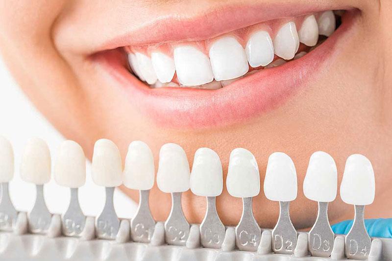 Bọc răng sứ khắc phục nhanh tình trạng khớp cắn hở nhẹ