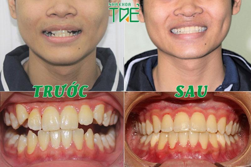 Niềng răng khớp cắn hở được áp dụng phổ biến trong nha khoa