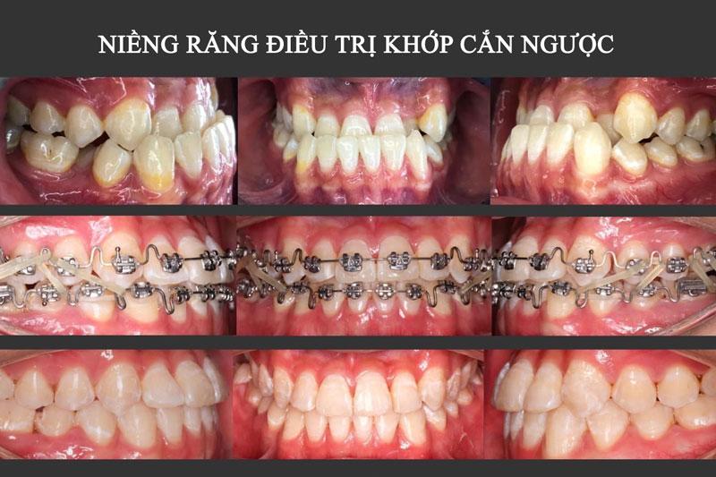 Niềng răng điều trị khớp cắn ngược trong trường hợp sai lệch do răng