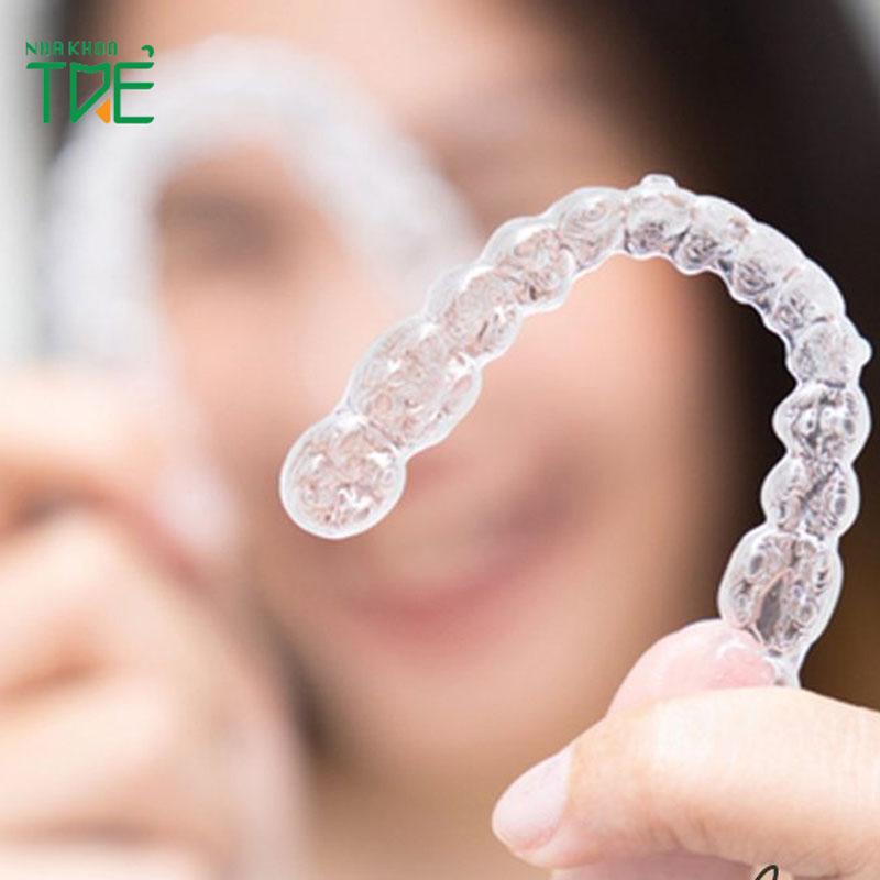 Giá niềng răng trong suốt là bao nhiêu?