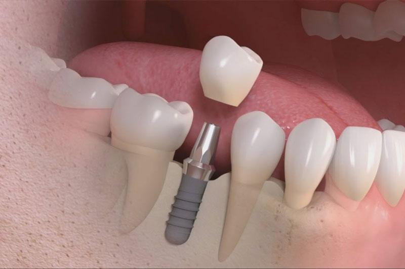 Giá trồng răng số 6 là bao nhiêu?