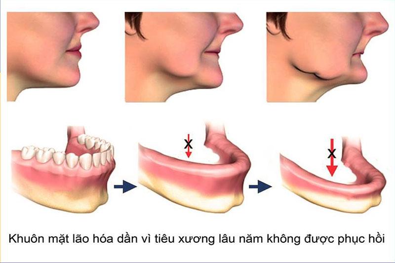 Khuôn mặt lão hóa dần do tiêu xương lâu năm