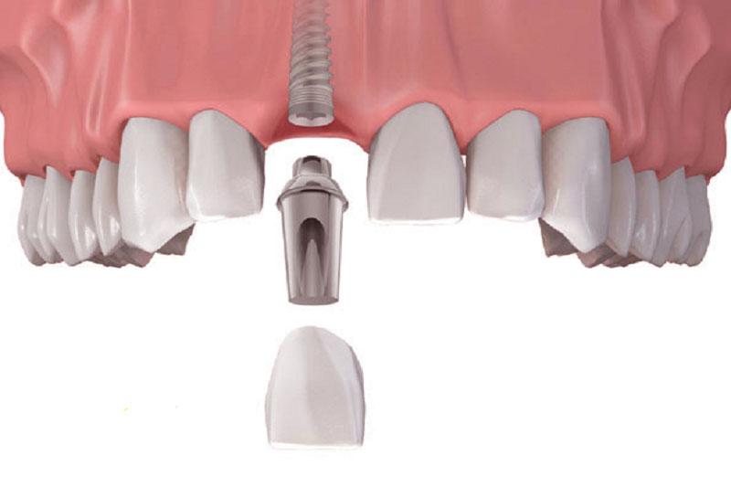 Phương pháp trồng răng hiện đại nhất là Implant