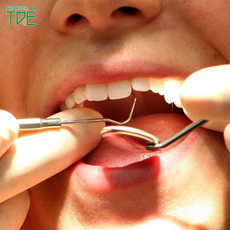 Hậu quả khôn lường từ việc niềng răng bị hỏng