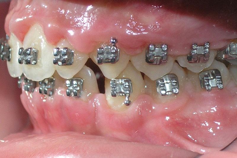 Niềng răng thất bại dẫn đến nhiều nguy hại cho răng miệng