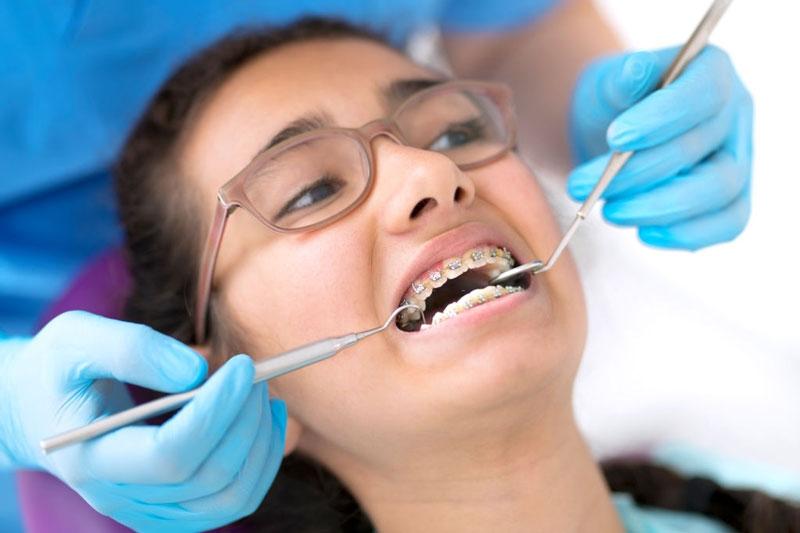 Lựa chọn địa chỉ niềng răng uy tín để tránh niềng răng xấu, bị hỏng