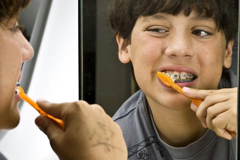 Cần lưu ý vệ sinh răng niềng kỹ lưỡng để hạn chế nguy cơ niềng răng không thành công