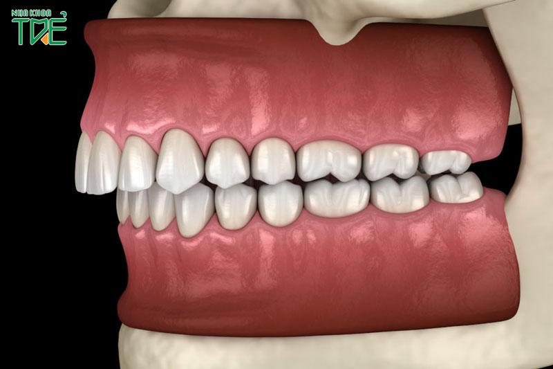 Khớp cắn sâu có nguy hiểm không? Niềng răng điều trị khớp cắn sâu như thế nào?
