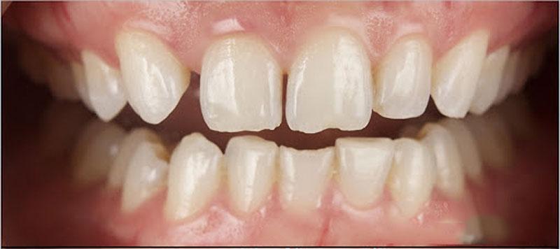 Khớp cắn sâu lâu ngày sẽ dẫn đến hiện tượng mòn men răng