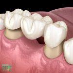 Làm cầu răng sứ sử dụng được bao lâu?